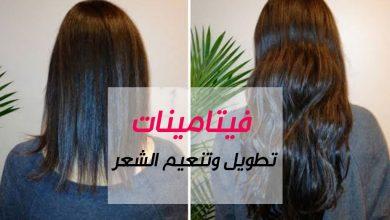 Photo of فيتامينات تطويل الشعر وتكثيفه