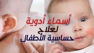 Photo of أسماء أدوية لعلاج حساسية الأطفال