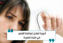 Photo of أدوية علاج تساقط الشعر في فترة قصيرة