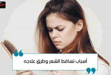 Photo of أسباب تساقط الشعر وطرق علاجه