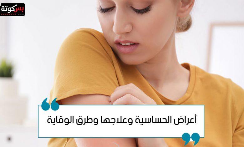 أعراض الحساسية وعلاجها وطرق الوقاية