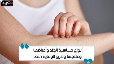 Photo of أعراض حساسية الجلد وعلاجها وطرق الوقاية منها