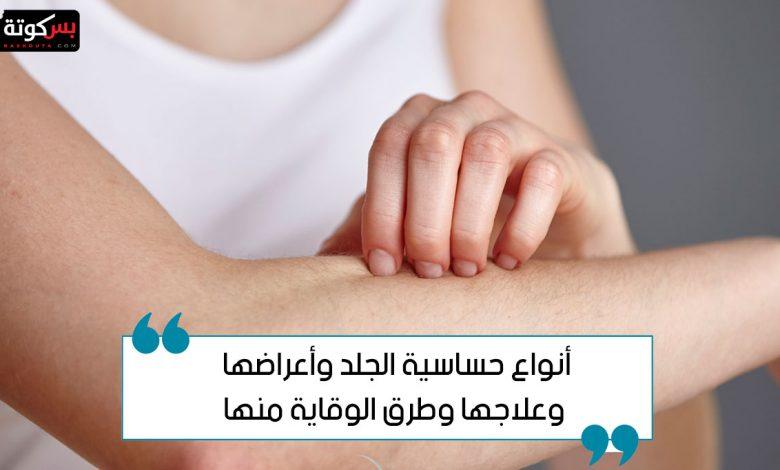 أنواع حساسية الجلد وأعراضها وعلاجها وطرق الوقاية منها