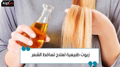 Photo of زيوت طبيعية لعلاج تساقط الشعر