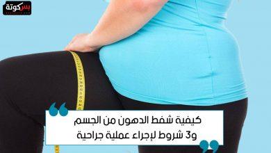 Photo of شفط الدهون من الجسم وشروط إجراء عملية جراحية