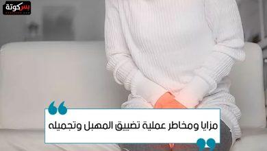 Photo of مزايا ومخاطر عملية تضييق المهبل وتجميله