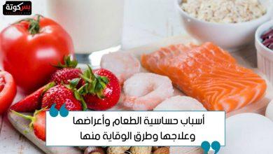 Photo of أسباب حساسية الطعام وأعراضها وعلاجها وطرق الوقاية منها