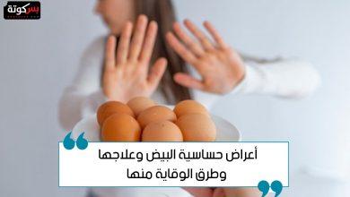 Photo of أعراض حساسية البيض وعلاجها وطرق الوقاية منها