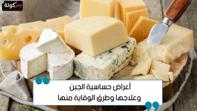 Photo of أعراض حساسية الجبن وعلاجها وطرق الوقاية منها