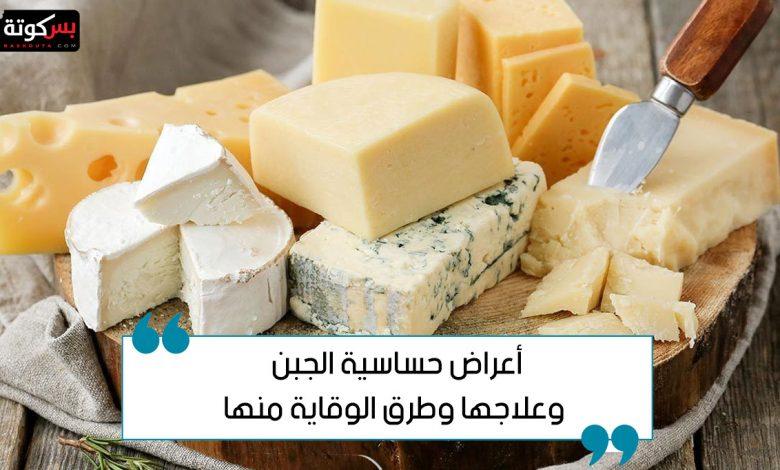 أعراض حساسية الجبن وعلاجها وطرق الوقاية منها
