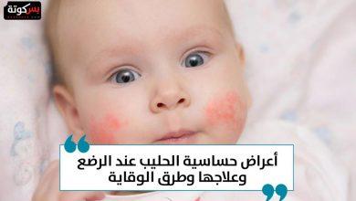Photo of أعراض حساسية الحليب عند الرضع وعلاجها وطرق الوقاية