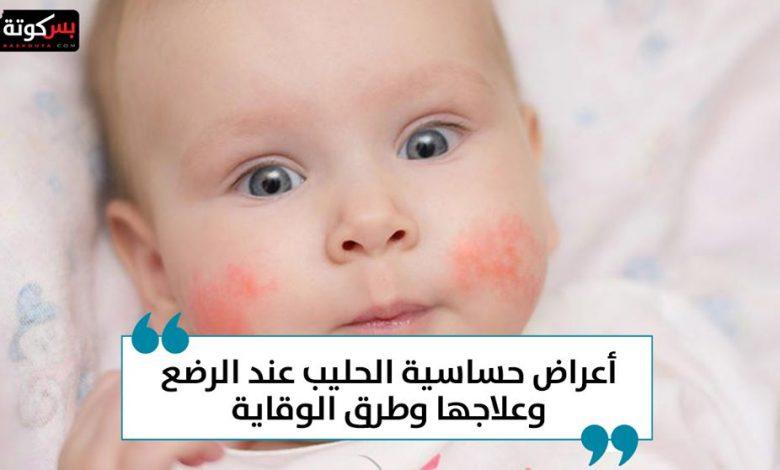 أعراض حساسية الحليب عند الرضع وعلاجها وطرق الوقاية