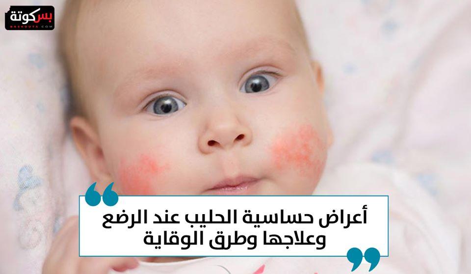 أعراض حساسية الحليب عند الرضع وعلاجها وطرق الوقاية موقع بسكوتة