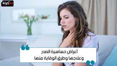 Photo of أعراض حساسية الصدر وعلاجها وطرق الوقاية منها