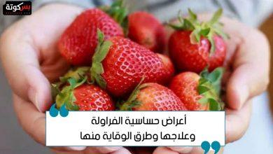 Photo of أعراض حساسية الفراولة وعلاجها وطرق الوقاية منها