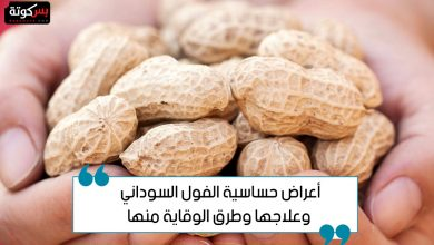 Photo of أعراض حساسية الفول السوداني وعلاجها وطرق الوقاية منها