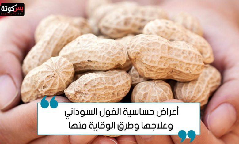 أعراض حساسية الفول السوداني وعلاجها وطرق الوقاية منها
