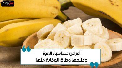 Photo of أعراض حساسية الموز وعلاجها وطرق الوقاية منها