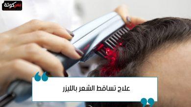 Photo of علاج تساقط الشعر بالليزر وحل مشكلة الصلع والثعلبة نهائيًا