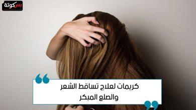 Photo of أسماء وأسعار كريمات لعلاج تساقط الشعر والصلع المبكر
