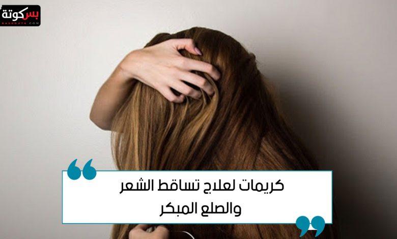 كريمات لعلاج تساقط الشعر والصلع المبكر