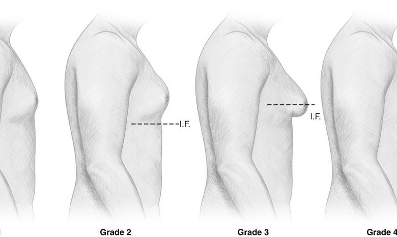 درجات التثدي عند الرجال