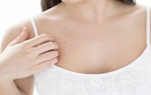 أسباب ظهور النمش في البطن